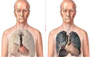 Органы курильщика и здорового человека
