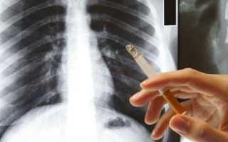 Может ли флюорография показать что человек курит