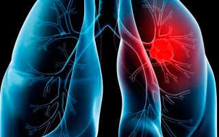 Рак от курения первые признаки