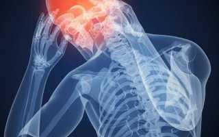Болит голова после вейпа