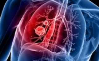 Причины рака легких у некурящих
