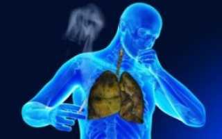 Лечение бронхита курильщика в домашних условиях
