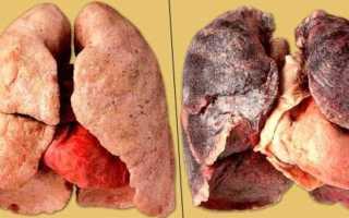 Курение и его влияние на состояние здоровья