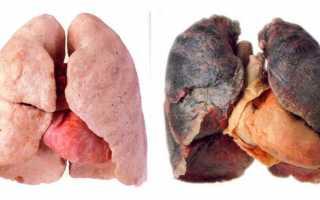 Легкие после месяца курения