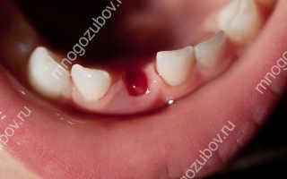 Можно ли курить когда вырвут зуб