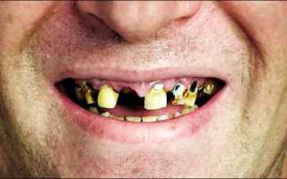 Курение и зубы вред