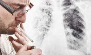 Что нельзя делать когда бросаешь курить