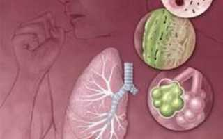 Пневмония из за курения