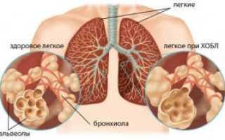 Симптомы бронхита курильщика у взрослых