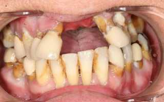 Чем отбелить зубы от никотина