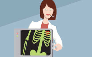 Можно ли курить перед рентгеном