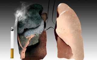 Легкие курильщика при вскрытии
