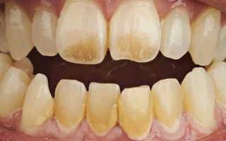 Почему от курения желтеют зубы